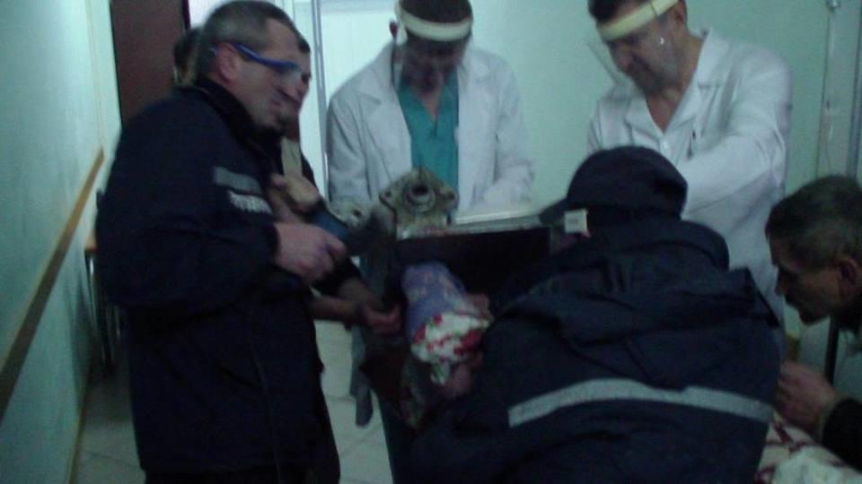 У Конотопі рятувальники визволили руку жінки з електром'ясорубки, фото-2